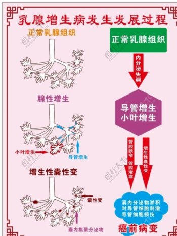 乳腺增生病发过程