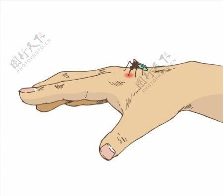 被蚊子叮咬的手图片